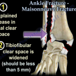 Maisonneuve Fracture   Archview Physiotherapy   Massage   Dry